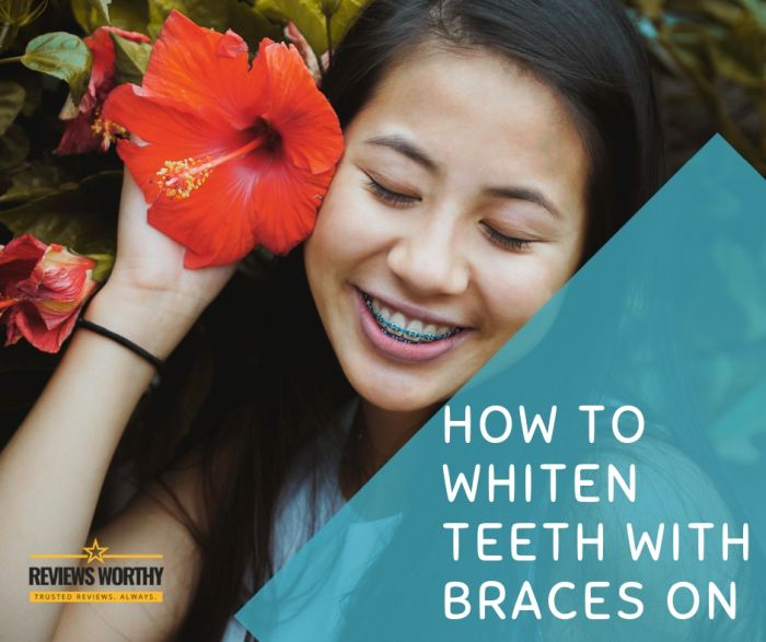 How To Whiten Teeth With Braces On